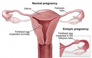 Image of Ectopic Pregnancy - Courtesy Mayo Foundation